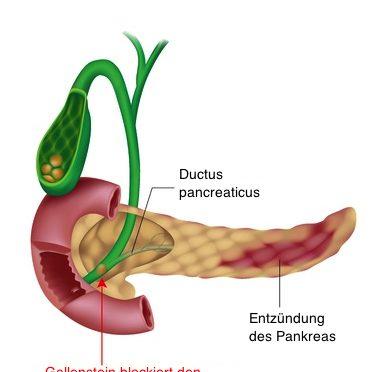 Akute Pankreatitis – Die Symptome