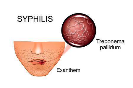 Infektionskrankheiten: Syphilis / Lues erklärt