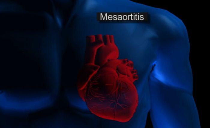 Mesaortitis Syphilis