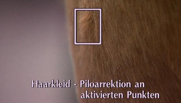 Haarkleid-Piloarrektion an aktivierten Punkten