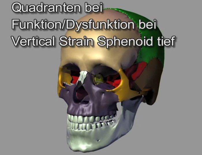 Quadranten Vertical Strain