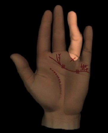 Abbildung 1: Verbogener Ringfinger,