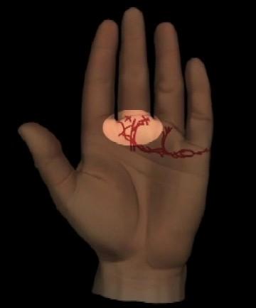 Abbildung 10: Herzlinienende mit kreuzenden Aufwärtslinien nach dem Mittelfinger. Fehlende oder kleine Nagelmonde.