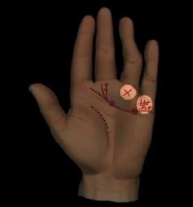 Abbildung 12: Allgemeine Durchblutungsstörungen: Hände und Finger hart oder gekrümmt. Kreuzzeichen auf Ringfingerberg, Zeichensetzung auf Kleinfingerberg.