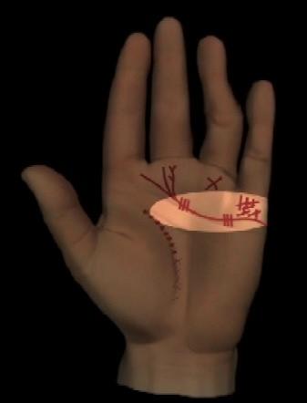 Abbildung 2: gebrochene und oder stark gekettete Herzlinie,