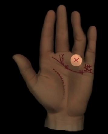 Abbildung 3: starker Ringfingerberg