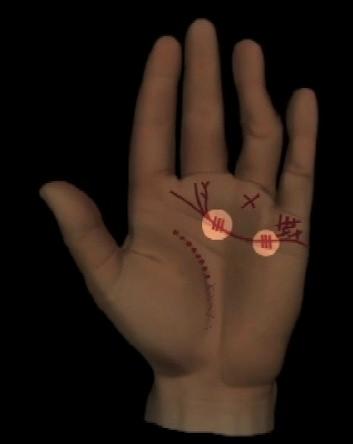 Abbildung 5: Kurze senkrechte Strichlinien auf der Herzlinie unter den Zwischenfingerräumen,