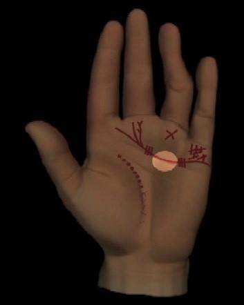Abbildung 6: Verdickung oder Ausbuchtung der Herzlinie