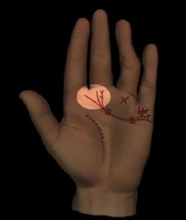 Abbildung 8: Herzmuskelschwäche: Herzlinie ist in beiden Händen dünn gezeichnet mit Gabelungen oder Quasten unter dem Mittelfinger