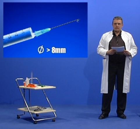 Das Volumen der Nadel sollte 8 mm aufweisen